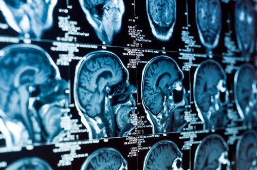 Atlanta Head or Brain Injury Attorney